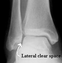 Overview of ankle injuries